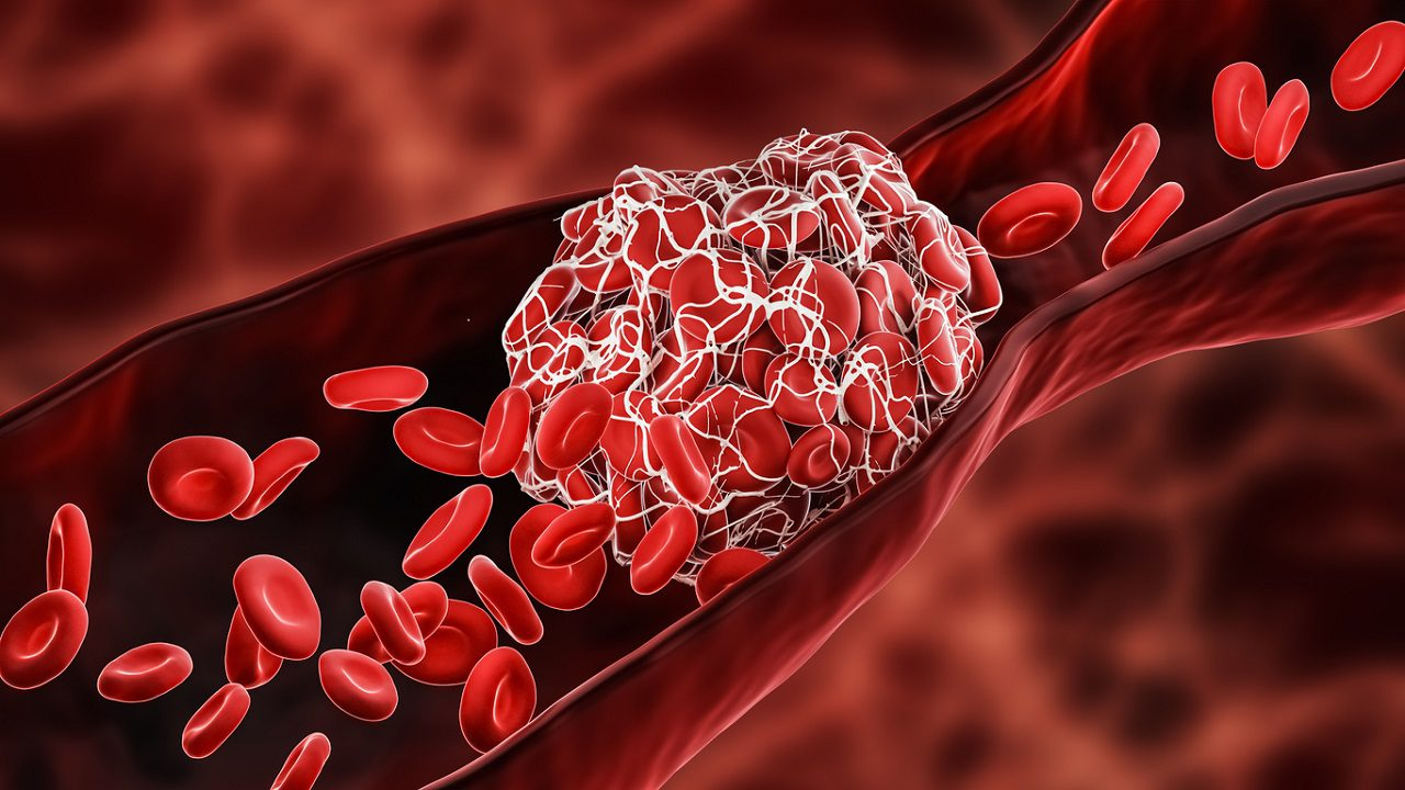 blood-clot-symptoms-to-look-out-for