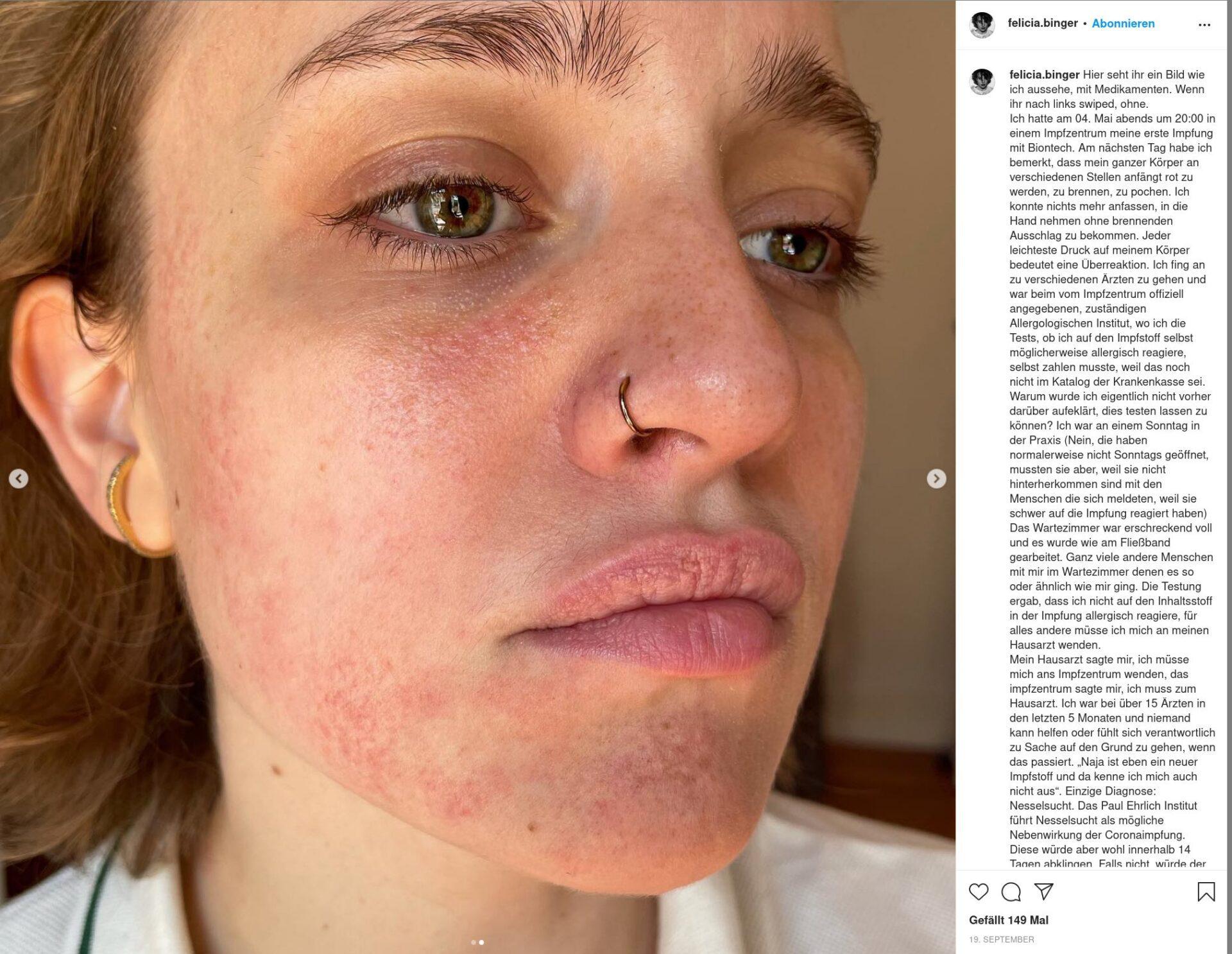 felicia-binger-28-jahre-alt-hat-sich-mit-biontech-impfen-lassen-–-nun-hat-sie-eine-impfreaktion
